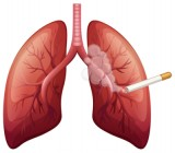 Cigarette Smoke Can Cause Lung Cancer