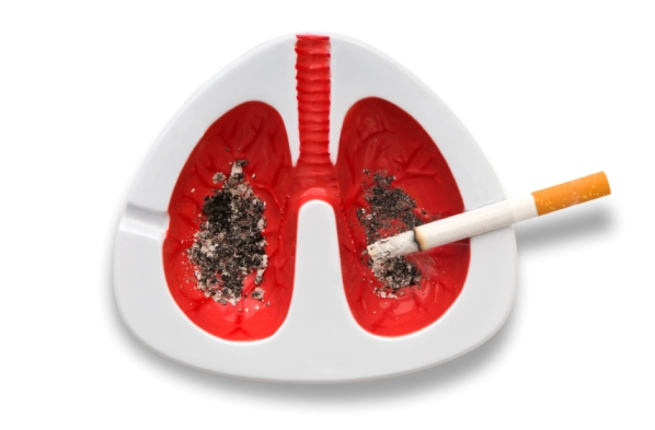 Smoking and Lung Cancer