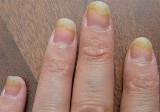 Fingernail Fungus from Cigarette Smoking